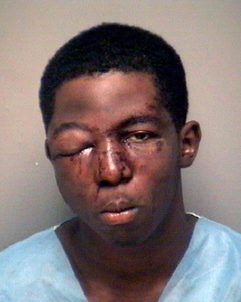 beaten robbers 1