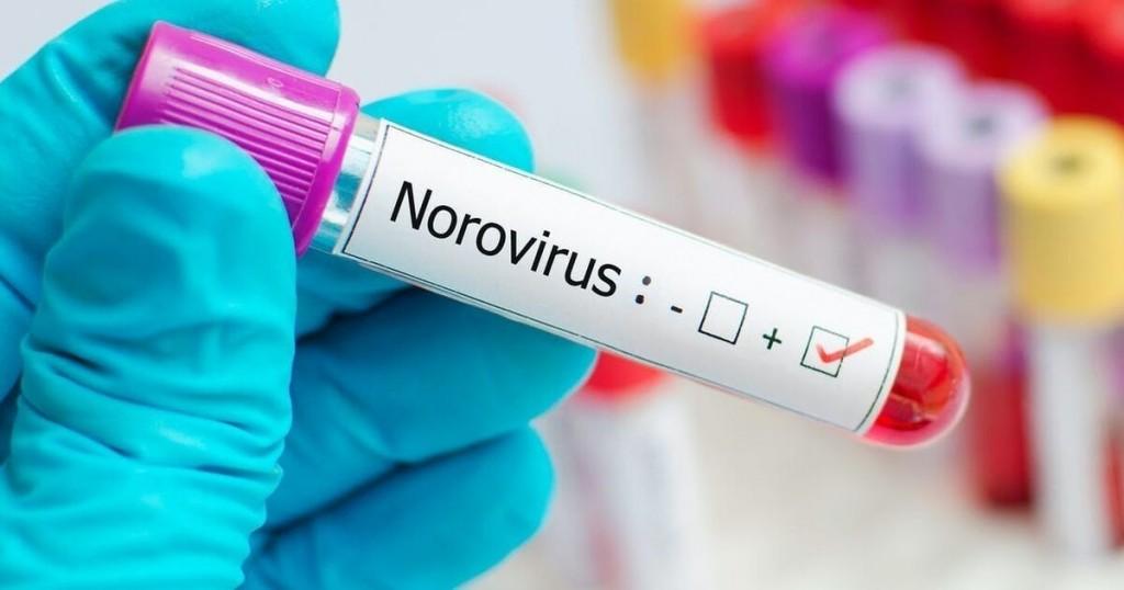 El Norovirus La Nueva Amenaza En China Que Pone En Alerta Al Mundo Entero