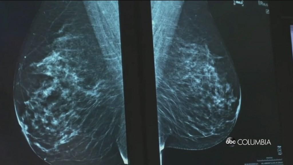 Vax And Mammogram