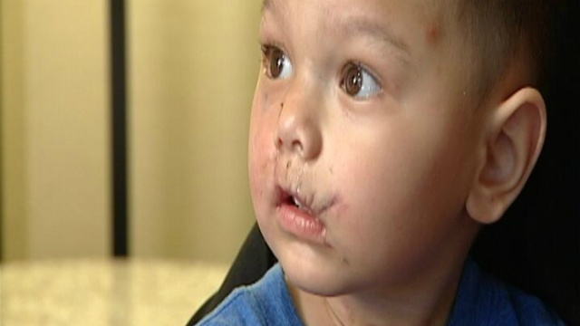 Child injured by flash grenade returns home