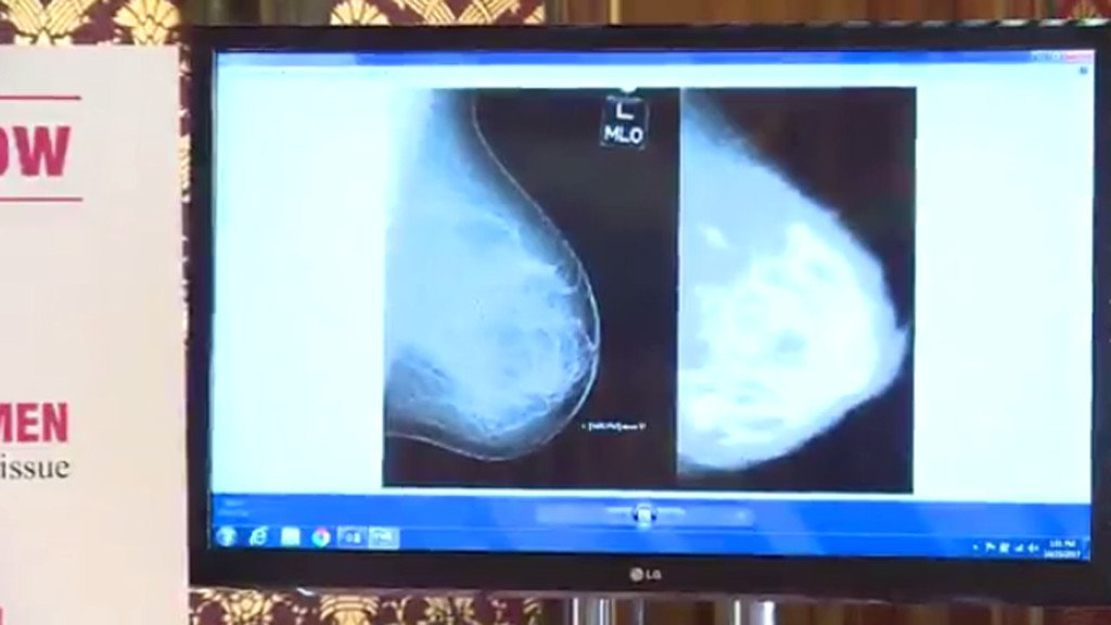 Proposed bill would require notice for women with dense breast tissue
