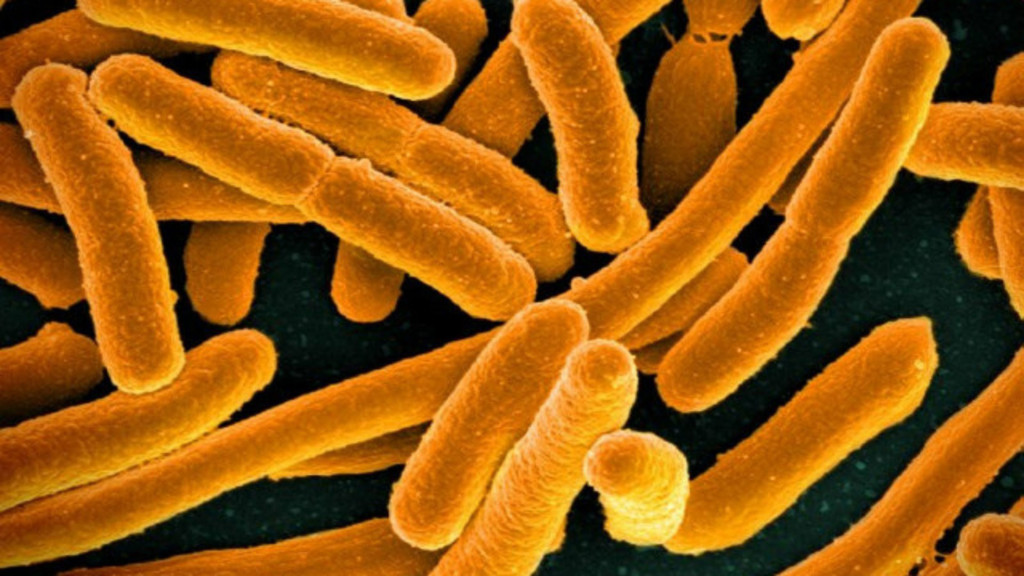 Health officials warn consumers about E. coli outbreak in Wisconsin
