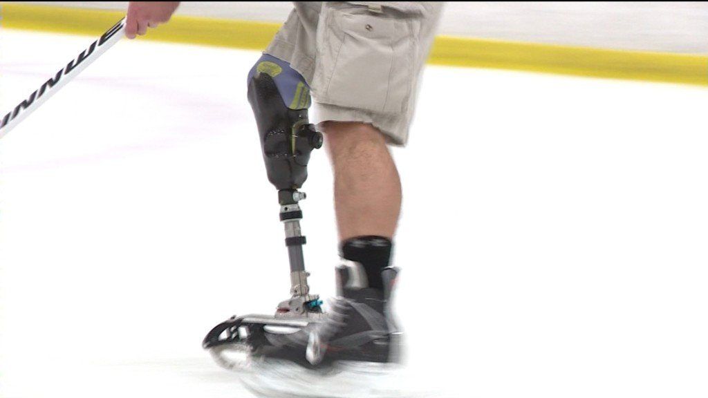 Amputee designs prosthetic skate for little boy