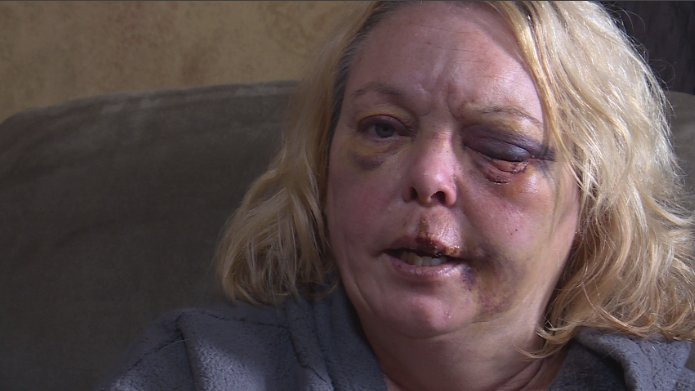 Mineral Point woman allegedly beaten by subcontractor after she refused to pay for incomplete job
