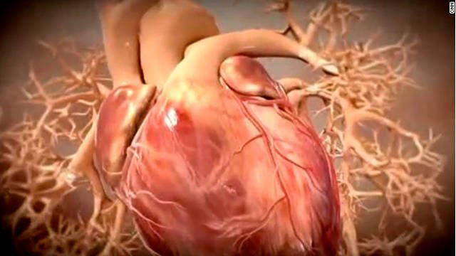 Trial: For heart disease, meds may work as well as invasive surgery