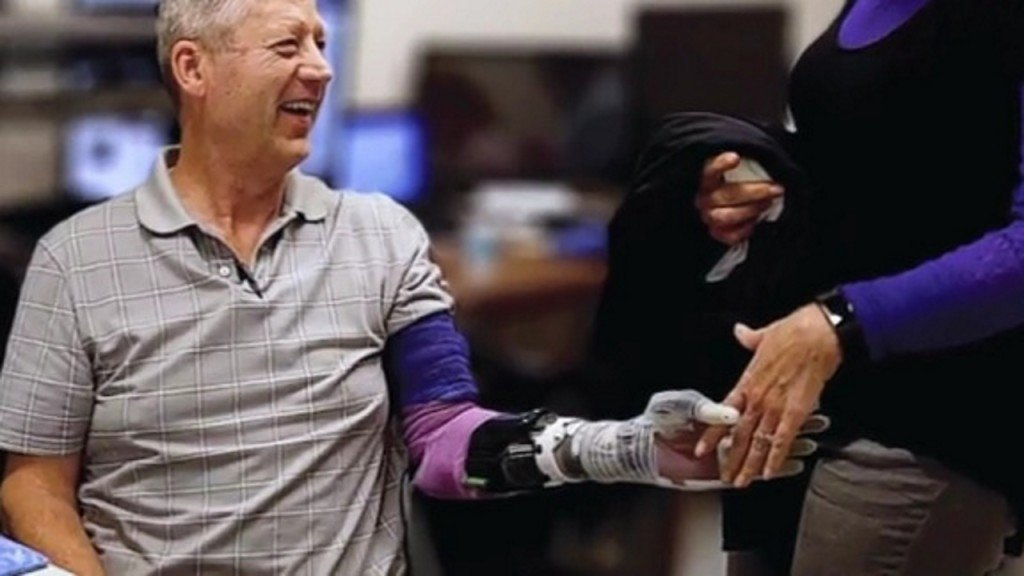 Amputee can feel objects with prosthetic arm