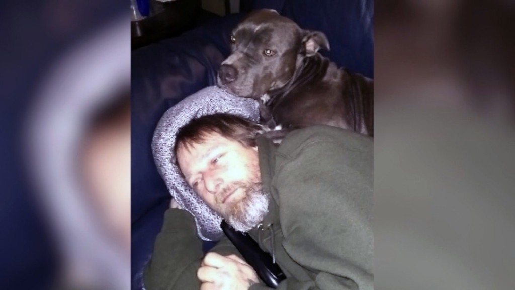 Man's limbs amputated after being licked by dog