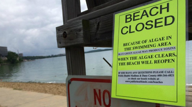 Toxic algae closes 3 Madison beaches