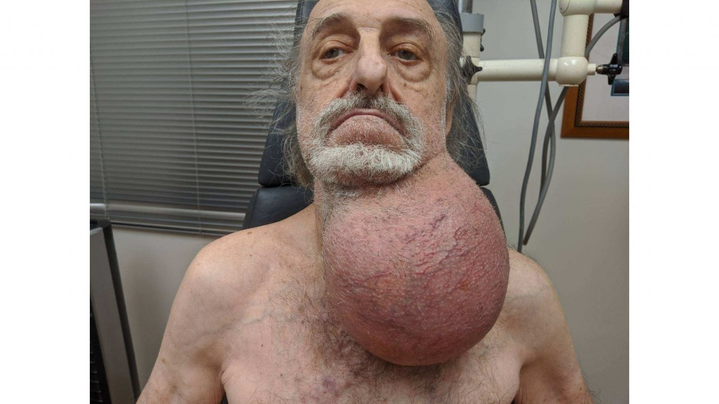 Doctors remove soccer ball-sized tumor from man's neck
