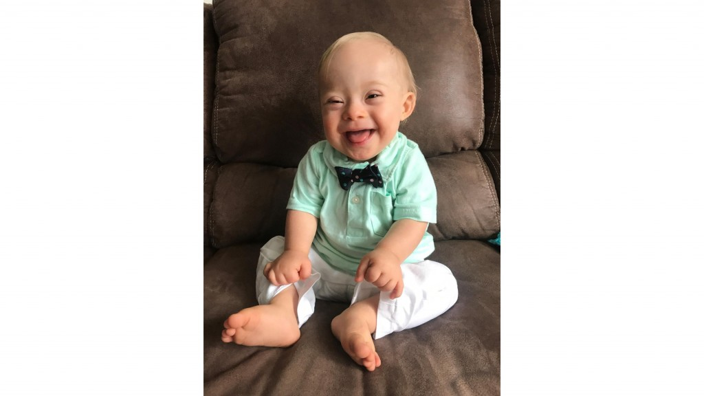 For the first time in its history, the Gerber spokesbaby is a child with Down syndrome