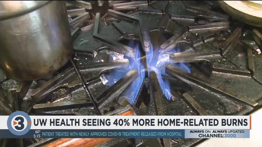 Uw Health Seeing 40% More Home Related Burns