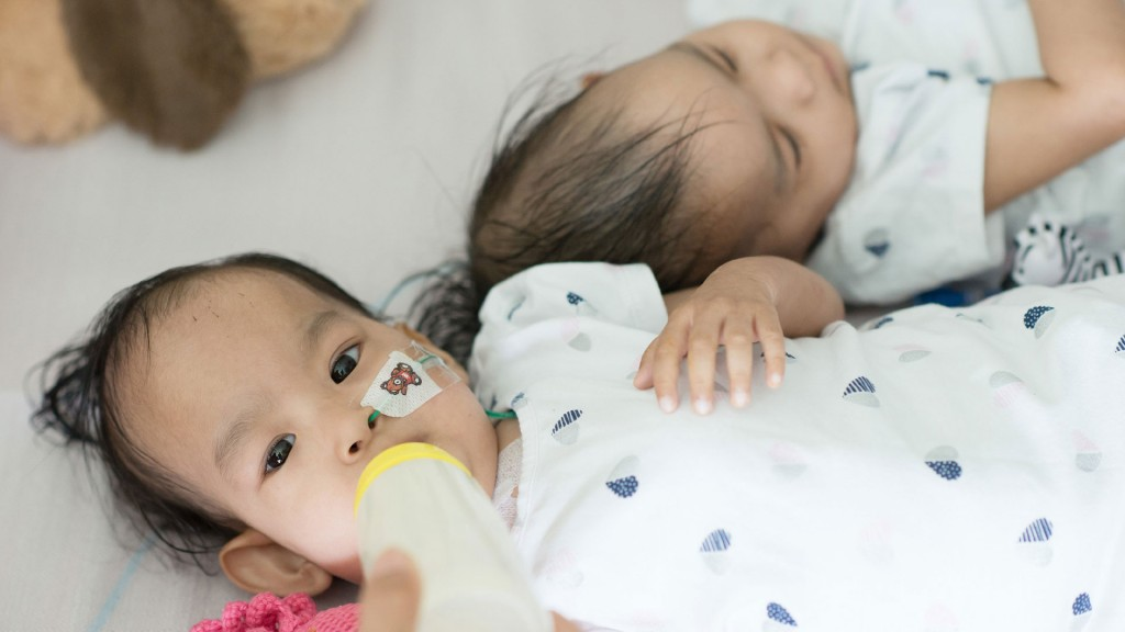Separated Bhutanese conjoined twins still want to be close