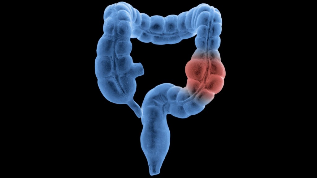 Medical groups differ on when to start colon, rectal cancer screening