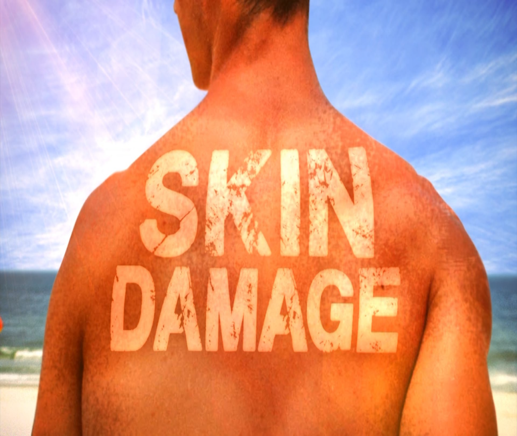 Protect your skin with sunscreen in the summer heat