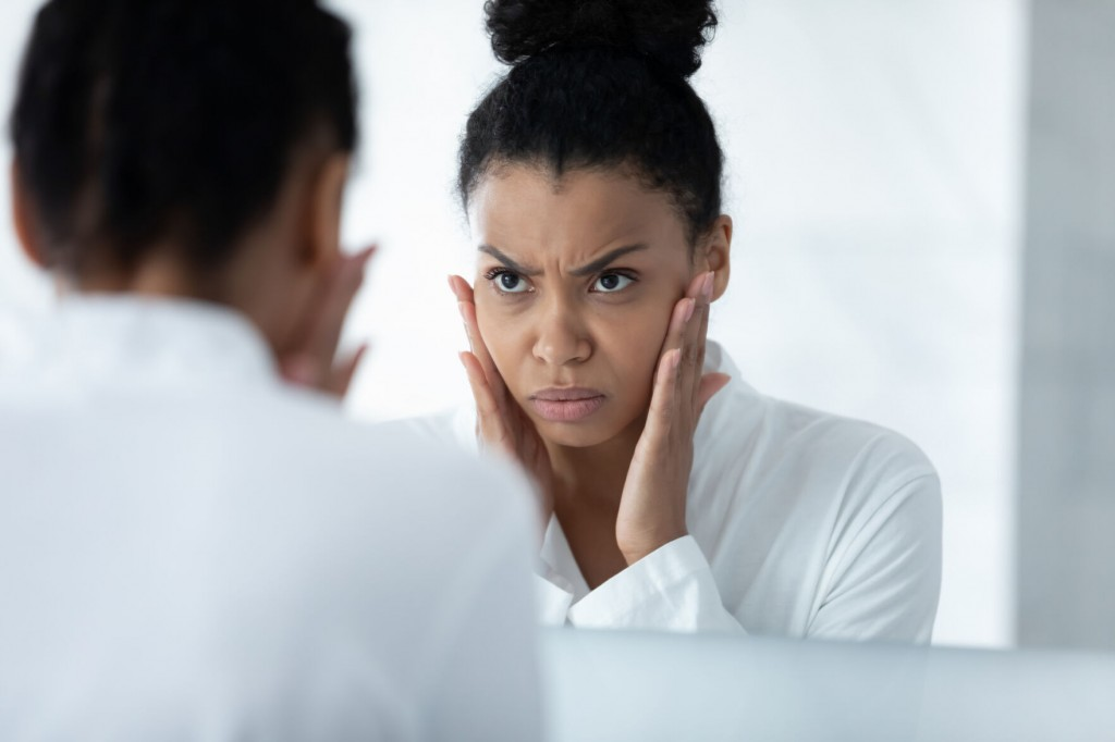 Acne Can Pose Unique Challenges In People With Darker Skin