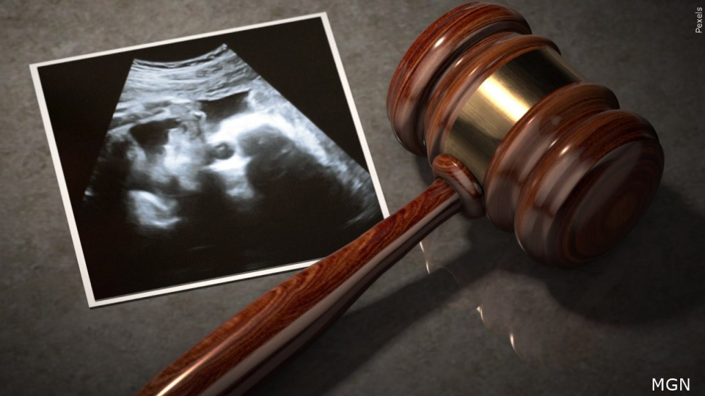 Abortion Law Lawsuit Mgn