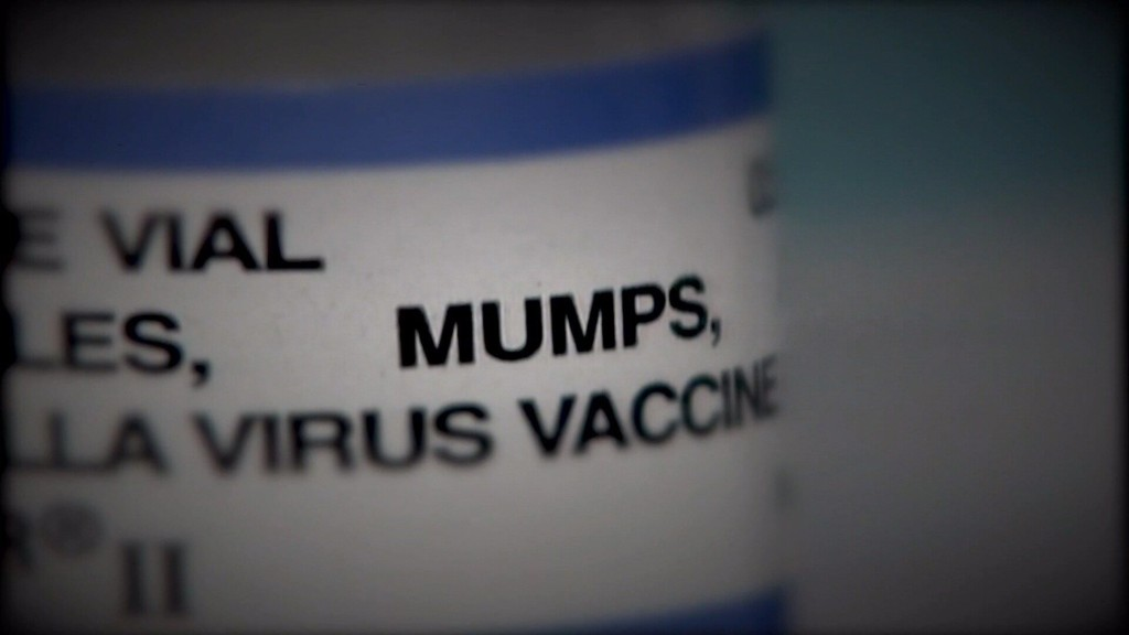 Mumps Outbreak Reported in Pittsburg