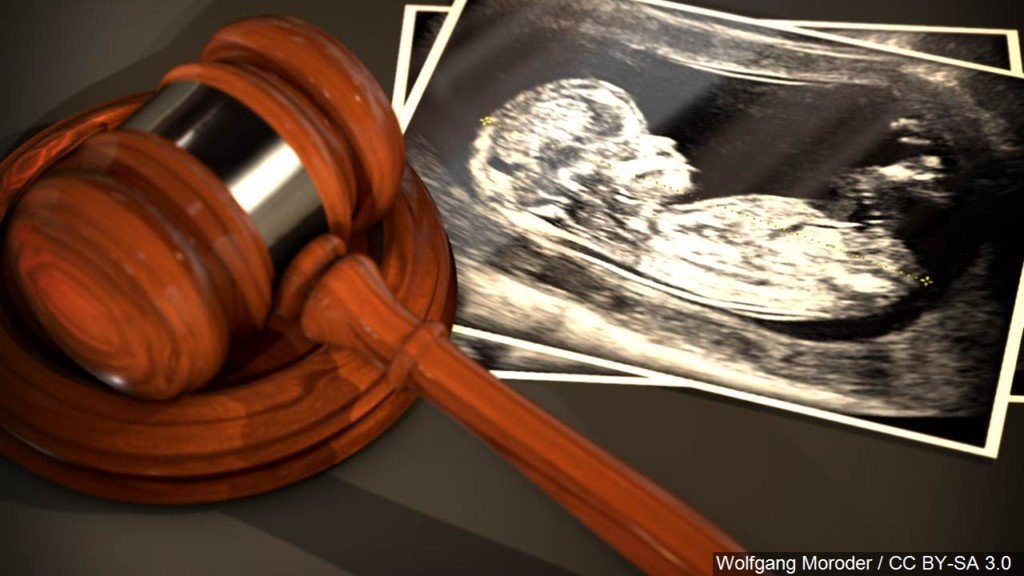Kansas resolution condemns New York abortion law