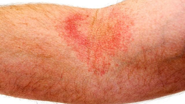 Study: Eczema patients at higher risk of suicide attempts