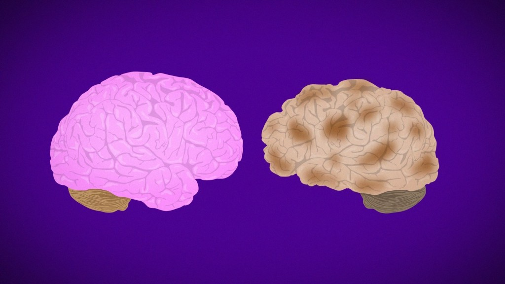 Lifestyle changes improve cognition in people at risk for Alzheimer's