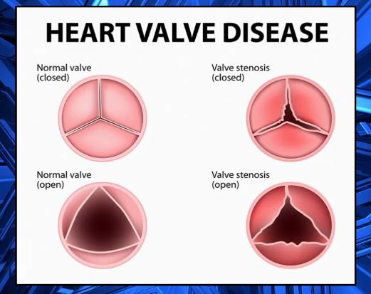 Highlighting Heart Valve Disease For American Heart Month