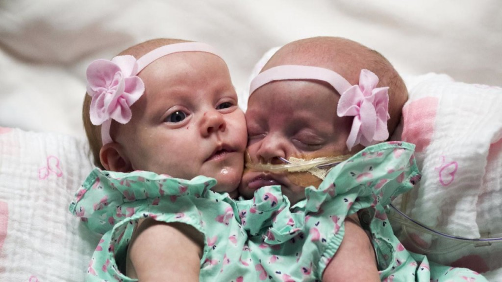 1-year-old twin girls successfully separated