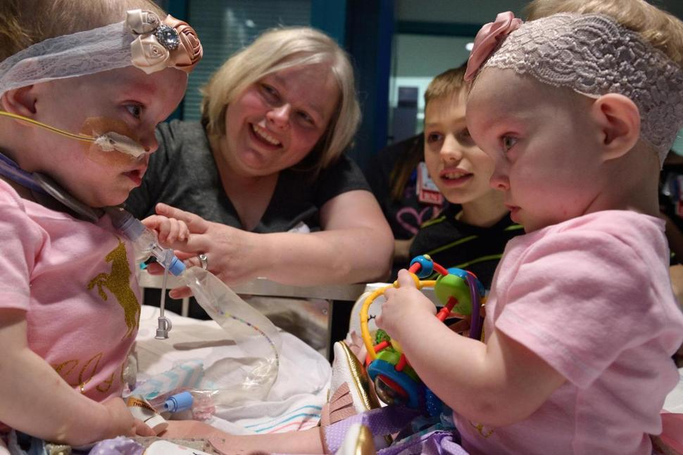 Conjoined twins separated at Houston hospital discharged