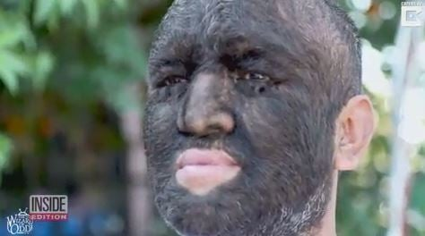 Meet the world's hairiest man