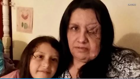 Mom with facial tumors says her daughter is being bullied because of them