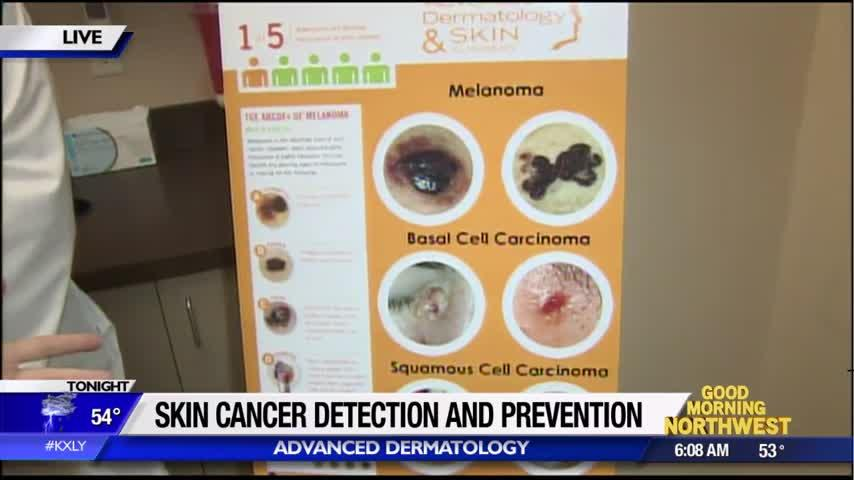 Spotting skin cancer and preventing it