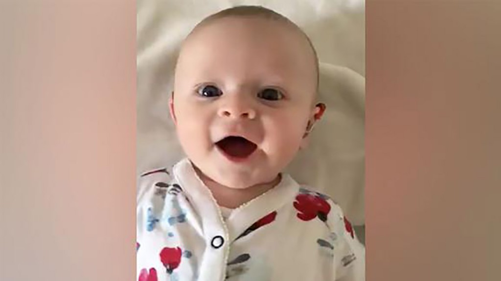 Video captures sound of joy when baby's hearing aid is turned on