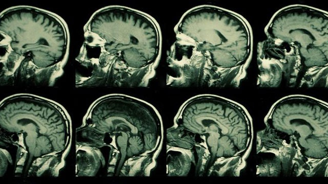 Mild traumatic brain injury linked to higher risk of PTSD, depression