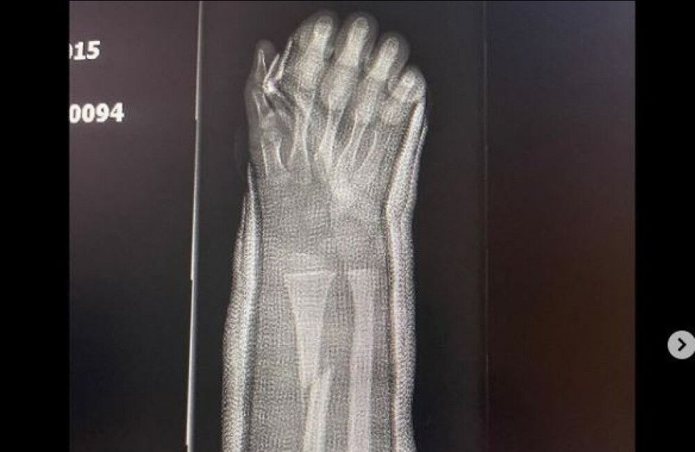 Kanye West Shares X Rays Of Son Saint's Broken Arm