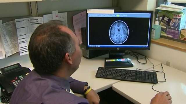 Study: concussions impact girls worse