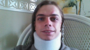 Onalaska native injured in Occupy Oakland protest featured in Rolling Stone