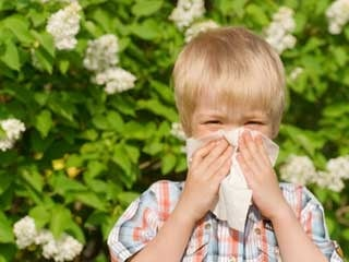 9 common allergies to watch for