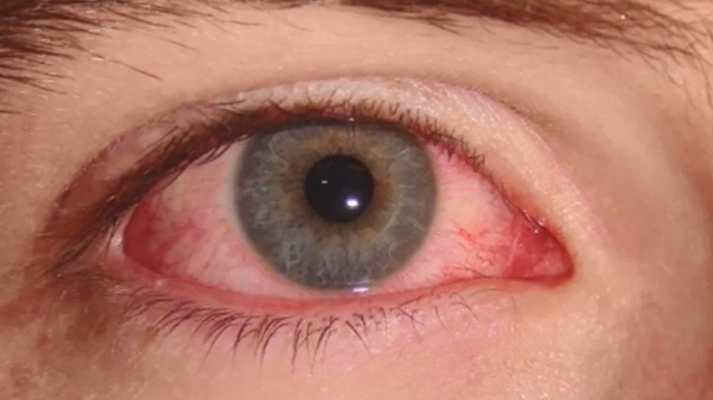 Mayo Health looks for other ways to treat pink eye