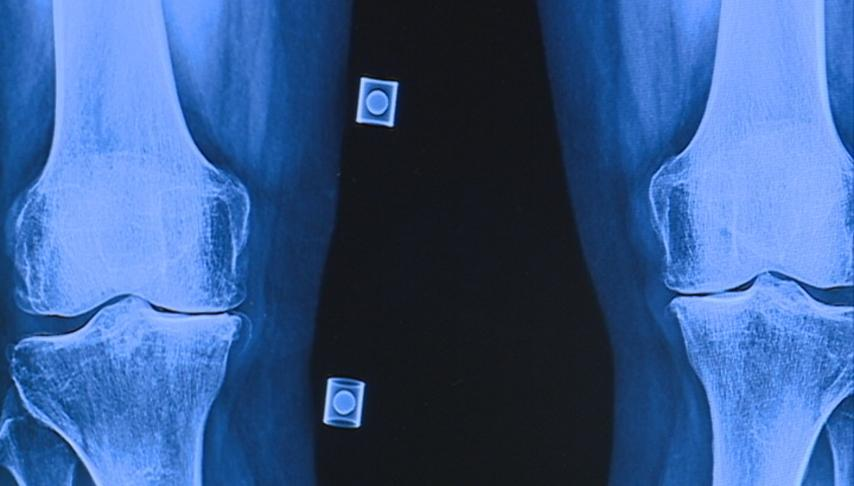 Average age of joint replacement patients decreasing