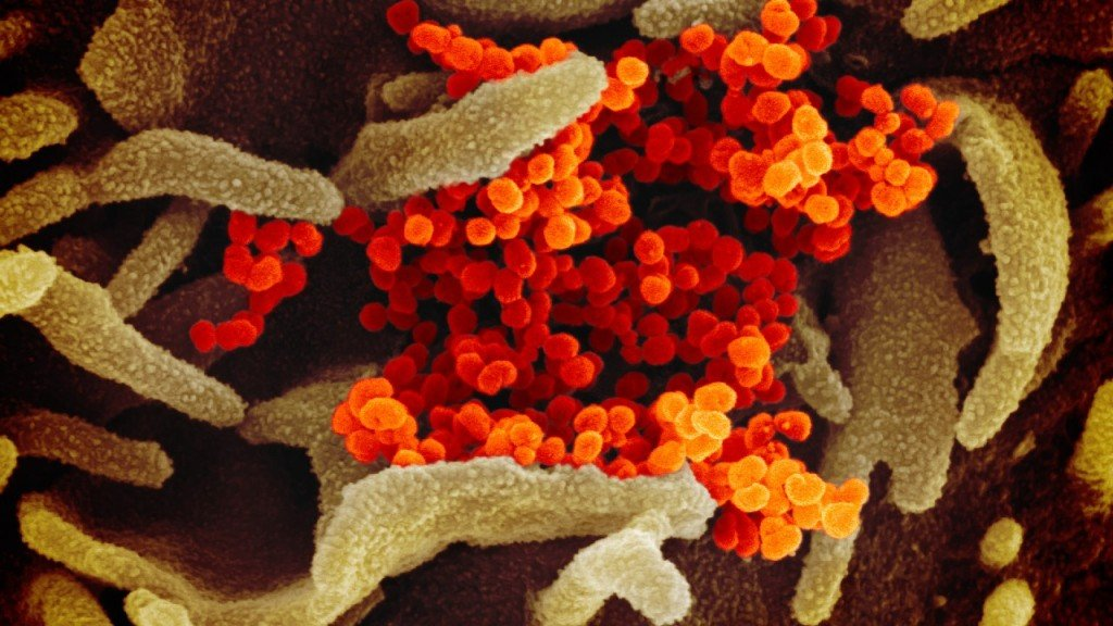Covid 19 Hospitalizations In Wisconsin Hit New Pandemic Low, Officials Say