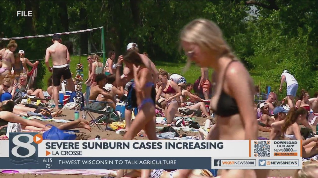 Severe Sunburn Cases On The Rise At Local Hospitals
