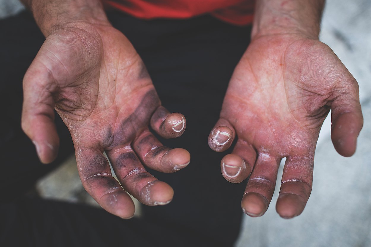 "Alex Honnold's ""monstrously huge"" hands, whose fingerprints have been worn away from years of rock climbing (Photo by Max Whittaker)"