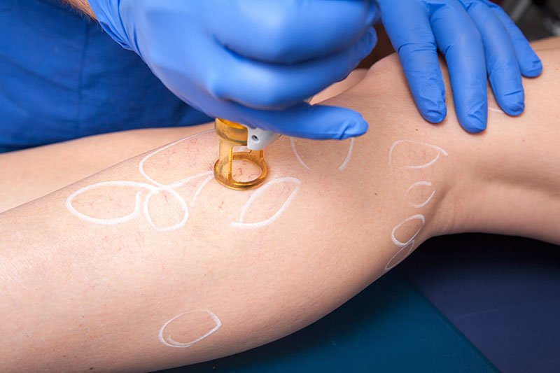 Removing Spider Veins With Medical Laser