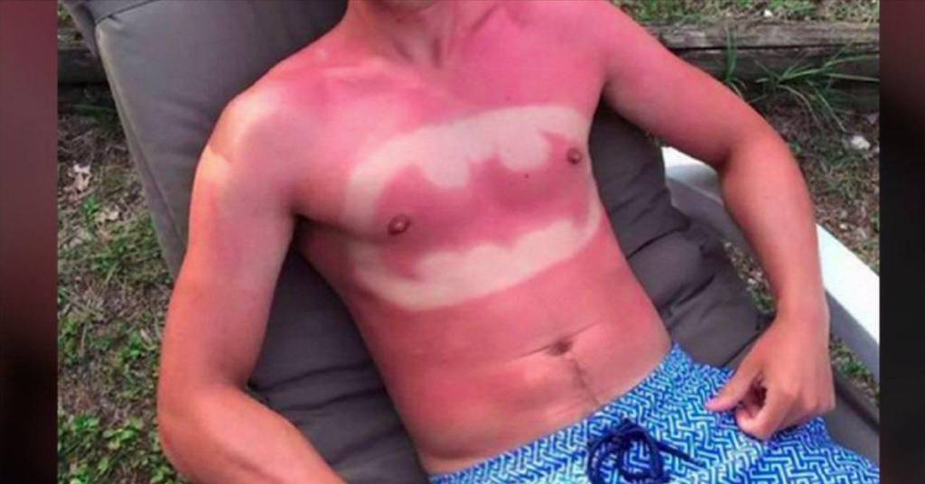 how to help a really bad sunburn
