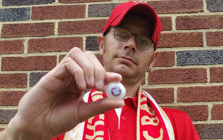Ryan Gibson with his Bayern Munich branded prosthetic eye