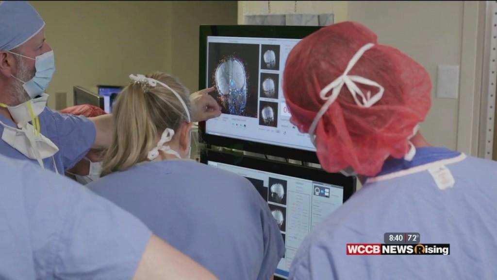 Healthy Headlines: Minimally Invasive Brain Surgery