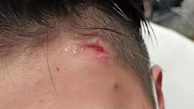 Ny: Asian Woman Attacked With Hammer Speaks