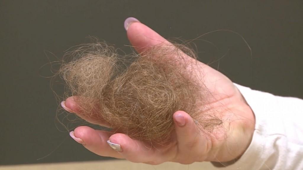 Explaining Covid 19 Hair Loss