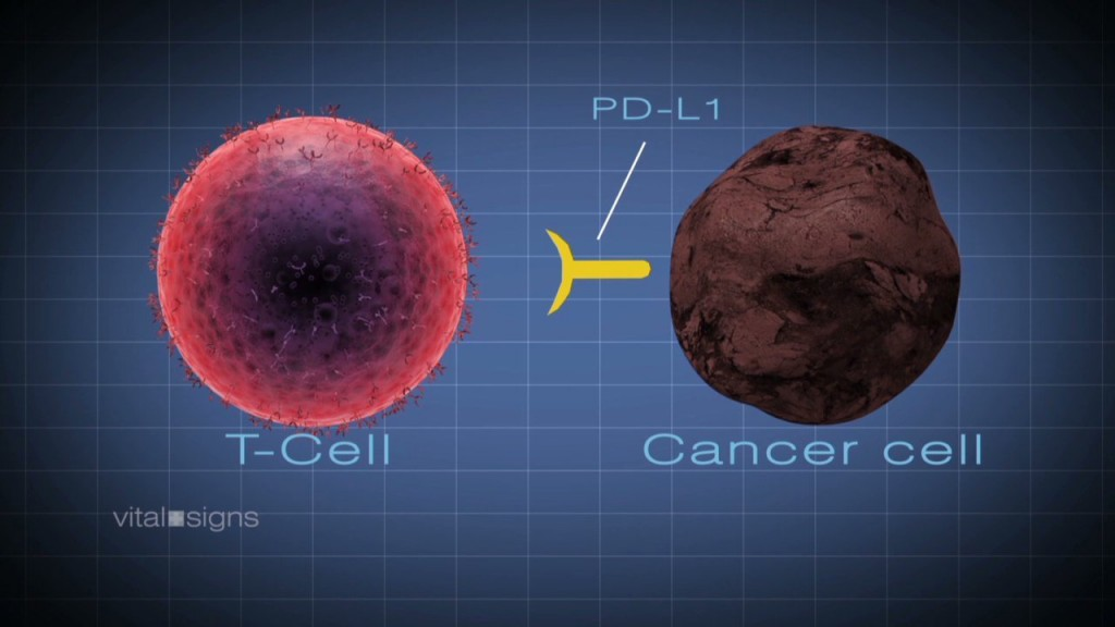 How poliovirus is being used to combat brain cancer