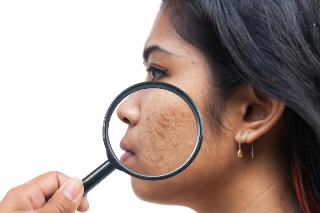 Does Diet Really Matter When It Comes To Adult Acne?