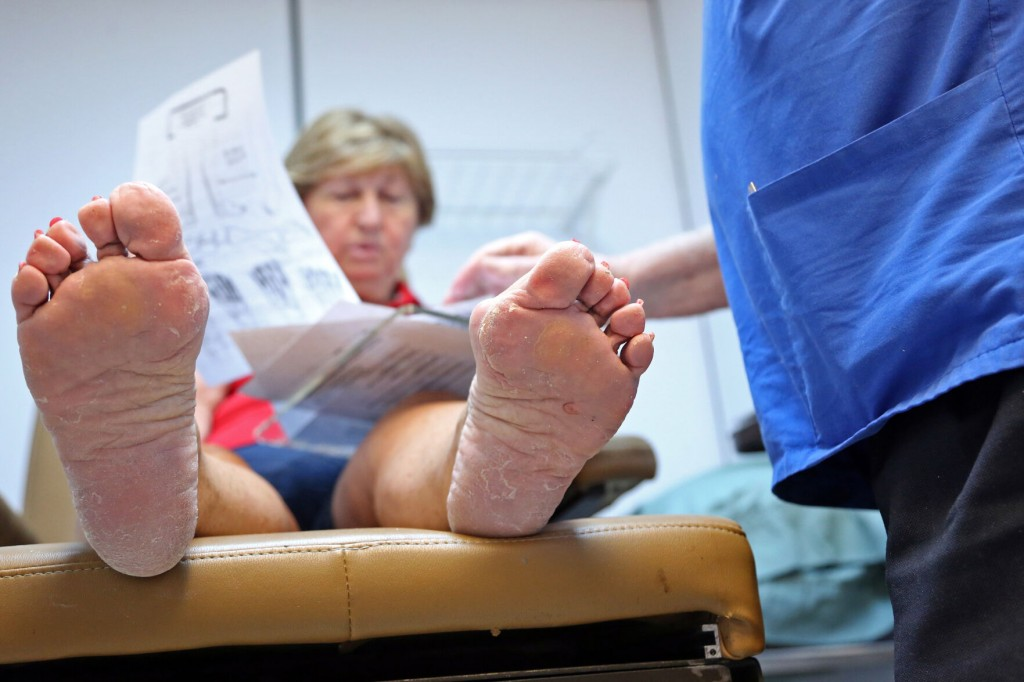 If Bunions Aren't Severe, There Are Nonsurgical Options